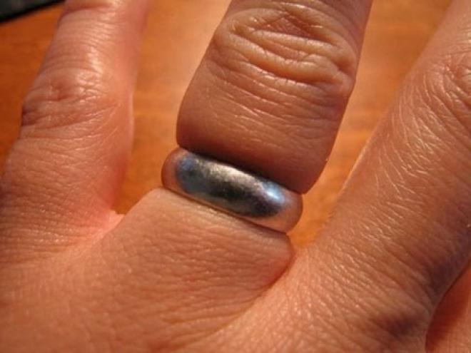 В Сызрани из-за укуса осы мужчина не смог снять кольцо